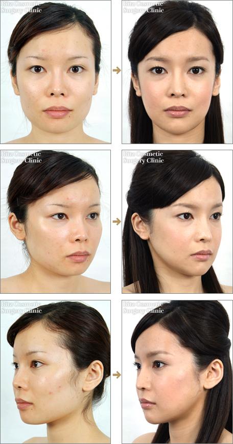 頬骨を削った症例写真3