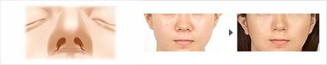 鼻翼縮小 症例