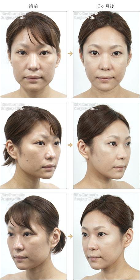 頬骨を削った症例写真1