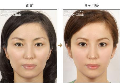頬骨縮小術(+エラ縮小術+オトガイVライン形成術)