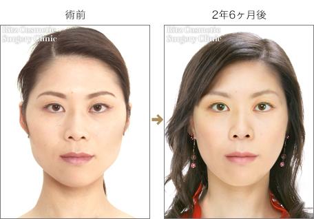 頬骨縮小術+エラ縮小術