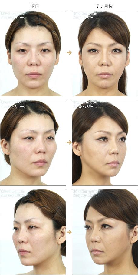 頬骨を削った症例写真2