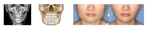 オトガイ骨切り 症例